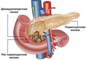 Рак поджелудочной железы. Симптомы и признаки, причины, диагностика, лечение. Стадии и виды рака поджелудочной железы