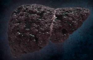 Билиарный цирроз печени - причины, симптомы, диагностика и лечение