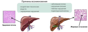 Неалкогольная жировая болезнь печени (НАЖБП): причины, признаки, симптомы и лечение