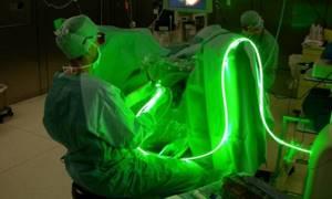 Лазерная вапоризация аденомы простаты как один из способов лечения аденомы простаты лазером