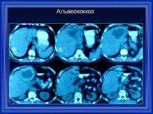 Альвеококкоз печени - причины, симптомы, диагностика и лечение