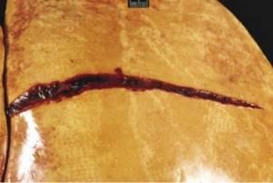 Разрыв печени: причины, лечение, последствия, прогноз