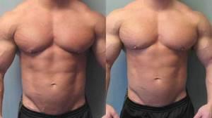Гинекомастия у мужчин: фото, причины возникновения
