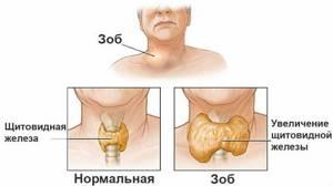 Кашель при щитовидке: симптомы и лечение народными средствами