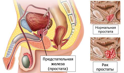 Лучевая терапия при раке предстательной железы: последствия и эффективность