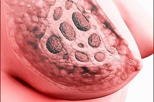 Дольковый рак молочной железы: его лечение и прогноз
