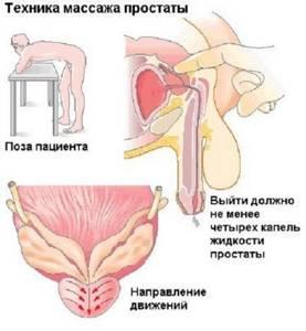 Как выполняется массаж предстательной железы