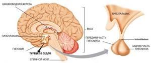 Что такое пустое турецкое седло в головном мозге - симптомы