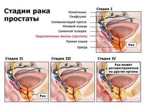 Рак предстательной железы 1 степени: продолжительность жизни, лечение рака простаты 1 степени
