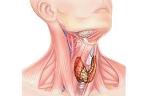 Узлы на щитовидной железе: чем опасны, их размеры, диагностика, лечение, фото