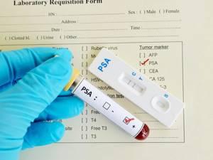 ИГХ при раке молочной железы - расшифровка результатов