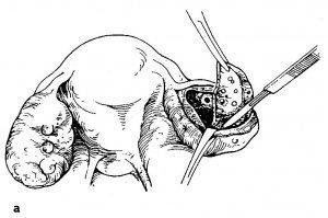 Декапсуляция яичников: что это, как проводится