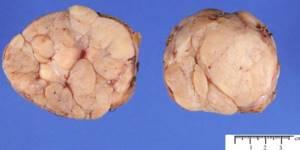 Листовидная фиброаденома молочной железы: что это, как обнаружить, лечение