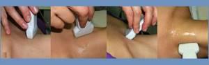 Допплерография щитовидной железы - диагностика болезней органа