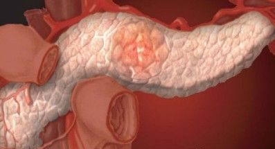 Стеатоз поджелудочной железы: симптомы, лечение, диета
