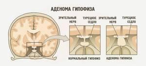 За что отвечает гормон соматотропин, где синтезируется, его функции