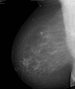 Интрамаммарный лимфоузел молочной железы: что это такое, диагностика и лечение