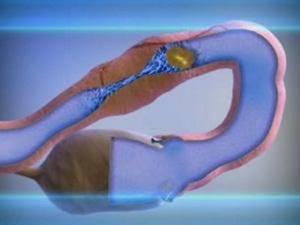 Спайки после лапароскопии: что делать, симптомы, лечение