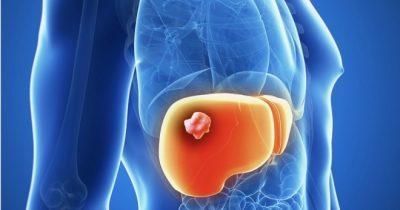 Гемангиома печени: что это такое, причины, симптомы, диагностика и лечение