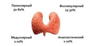 Рак щитовидной железы. Симптомы, признаки, причины, диагностика и лечение заболевания