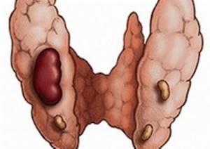 Гиперпаратиреоз: что это такое, симптомы и лечение у женщин