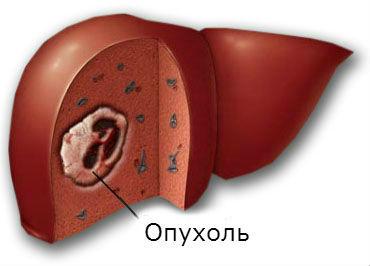 Доброкачественные опухоли печени - причины, симптомы, диагностика и лечение