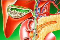 Билиарный панкреатит - причины, симптомы, диагностика и лечение