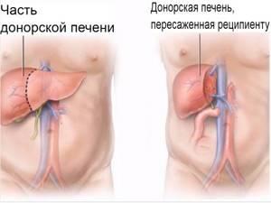 Гепатоцеллюлярная карцинома - причины, симптомы, диагностика и лечение