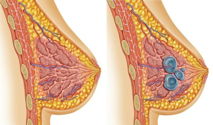 Мастопатия и беременность: причины возникновения и симптомы