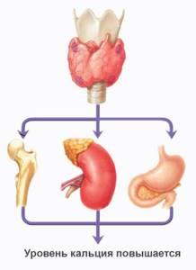 Вторичный гиперпаратиреоз и способы его лечения